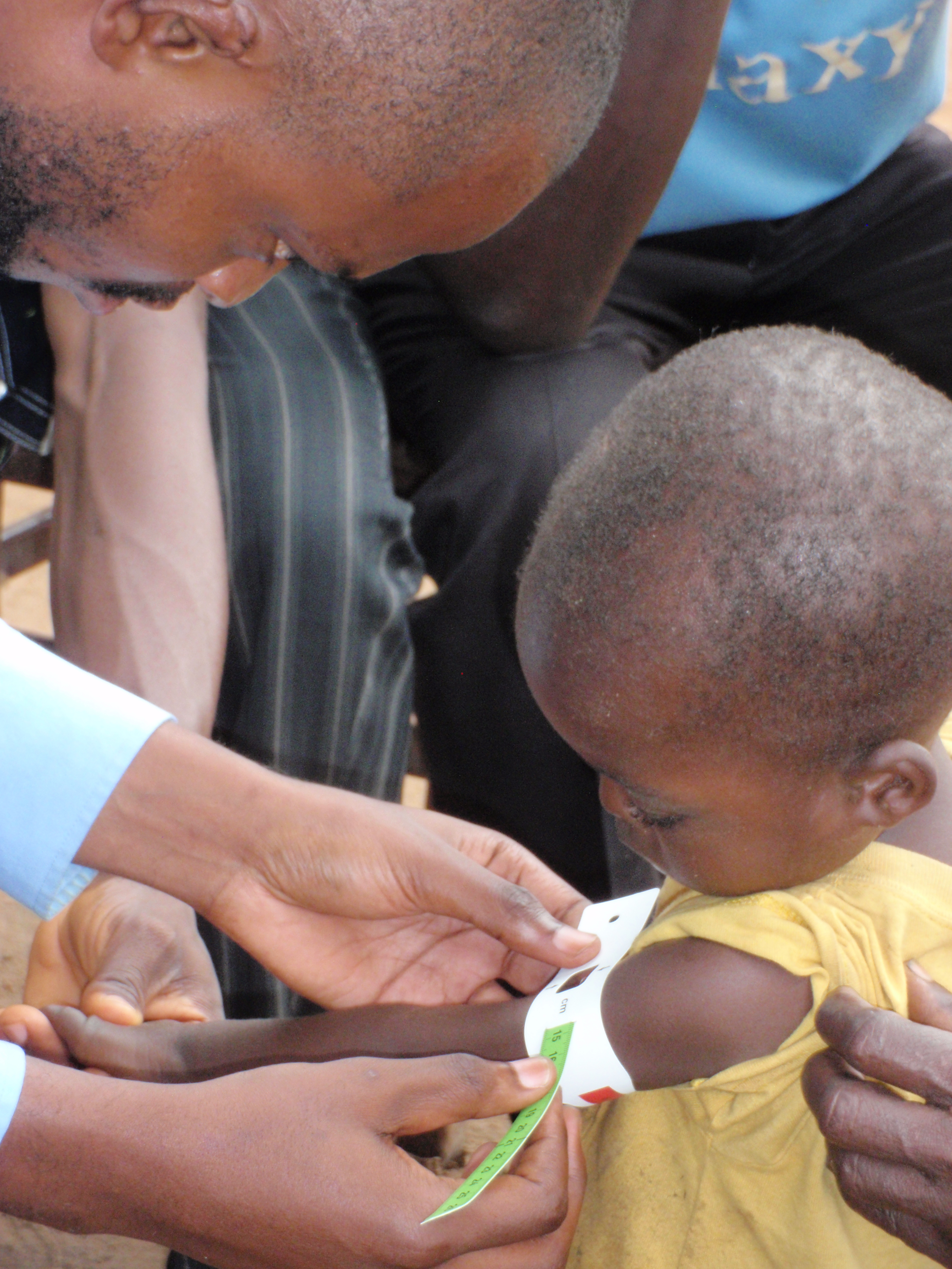 A simple measuring tool called a MUAC can be used by community health workers to measure a child's mid-upper arm circumference to quickly assess if a child is suffering from malnutrition.