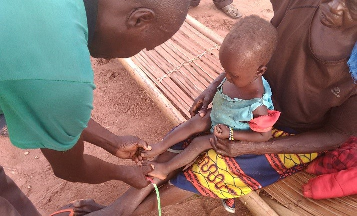 A community health volunteer in Nord Ubangi checks a child for edema in her feet.  Swelling in the feet is a sign that the child is malnourished.